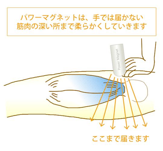 パワーマグネットでは手では届かない筋肉の深い所まで柔らかくしていきます。